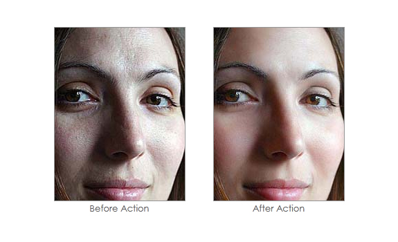 Soften Skin Effect